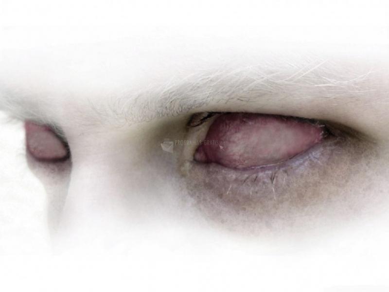 Pantallazo Ojos sin vista